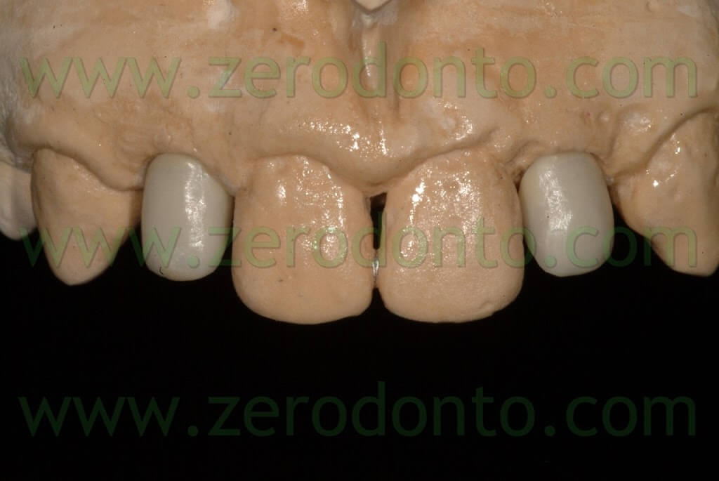 relyx unicem zirconia instructions